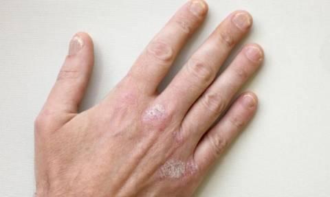 Ψωρίαση στα νύχια: Τα συμπτώματα και πώς αντιμετωπίζεται