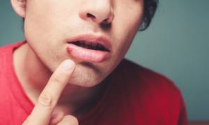 Επιχείλιος έρπης: Τι πρέπει να γνωρίζετε για τη μετάδοσή του