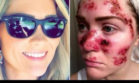 Η φωτογραφία της κοπέλας με καρκίνο του δέρματος που σόκαρε το διαδίκτυο