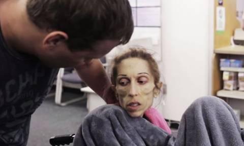 Η δραματική έκκληση της ηθοποιού που αργοπεθαίνει από ανορεξία (video)