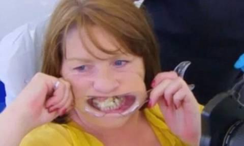 Αν είναι δυνατόν: Έφτιαχνε μόνη της τα δόντια με κόλλα στιγμής και δείτε πώς έγινε