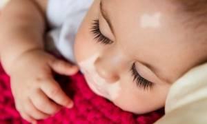 Λεύκη στα μωρά- Όλα όσα πρέπει να γνωρίζετε!