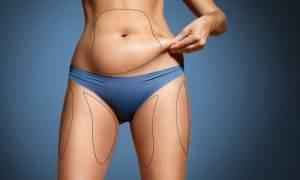 Αυτά που πρέπει να γνωρίζετε για το σωματικό λίπος