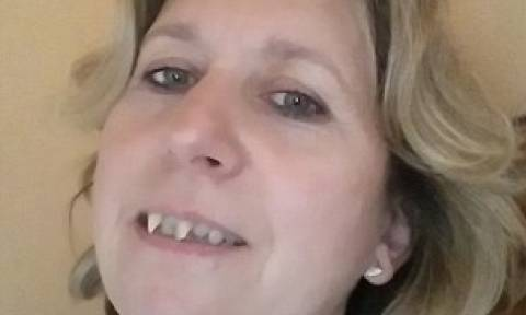 H γυναίκα που έβγαλε δόντια βαμπίρ (photos)