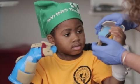 Έγινε η πρώτη μεταμόσχευση δύο χεριών σε παιδί (photos)