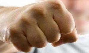 Πάφος: 25χρονος έδωσε μπουνιά σε γυναίκα-αστυνομικό