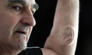 Ο άνθρωπος που «φύτεψε» ένα αυτί στο χέρι του που θα διαθέτει wi-fi - Δείτε γιατί (video)