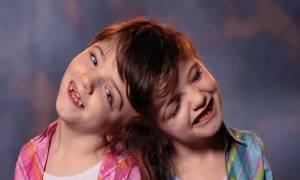 Τα σιαμαία κοριτσάκια που είναι αναγκασμένα να ζουν για πάντα μαζί αφού έχουν έναν εγκέφαλο