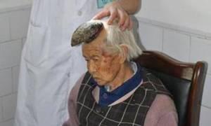 Η γυναίκα… μονόκερος - Δείτε πώς εξελίχθηκε μια κρεατοελιά στο κεφάλι της! (video)
