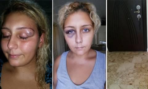 «Εκβίασε» τη σύλληψη του πρώην της ανεβάζοντας φωτογραφίες της κακοποίησής της