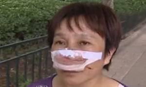 Φρικιαστική επίθεση: Της έκοψε τη μύτη με τα δόντια και την κατάπιε! (video)