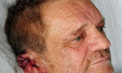 Νέο βίντεο από τη δολοφονική επίθεση των πίτμπουλ: «Διψούσαν για αίμα» δηλώνει το θύμα