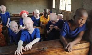 Μαλάουι: Καθηγητής σκόπευε να πουλήσει αλμπίνο μαθήτρια για να την ακρωτηριάσουν