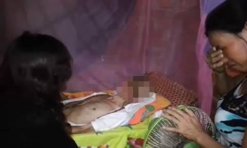 Βιετνάμ: Σαρκοφάγος ιός τρώει το πρόσωπό του εδώ και 11 χρόνια! (σκληρό βίντεο)
