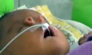 Μωρό γεννήθηκε με δύο «σωληνάκια» αντί για μύτη (video)