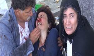 Εκρήξεις-Τουρκία: Τουλάχιστον 20 οι νεκροί σύμφωνα με πρώτο απολογισμό