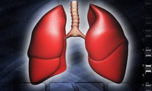 Πνευμονιοκοκκική πνευμονία: Πώς εκδηλώνεται και ποια είναι η αντιμετώπιση