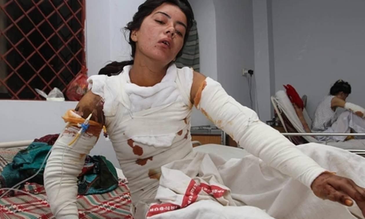 Πακιστάν: Την έκαψε γιατί απέρριψε την πρόταση γάμου
