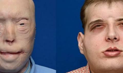 Ιατρικό θαύμα: Η πρώτη ολική μεταμόσχευση προσώπου (videos+photos)