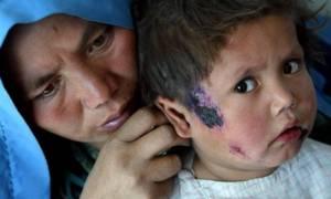 Φρίκη: Οι τζιχαντιστές «σπέρνουν» θανατηφόρα ασθένεια που τρώει τη σάρκα (σκληρές εικόνες)