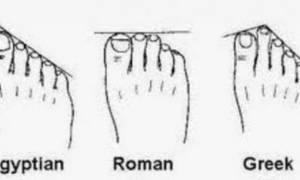 Το ήξερες; - Τι είναι το Ελληνικό Πόδι και πόσοι Έλληνες το έχουν;