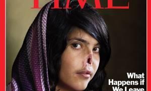 Φρίκη στο Αφγανιστάν: Έκοψε τη μύτη της 20χρονης συζύγου του (photo)