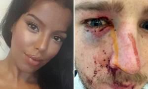 Βρετανία: Τον κάρφωσε στο μάτι με γόβα στιλέτο (pics+vid)