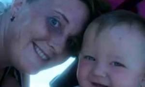Το μέτωπό της εξερράγη κατά τη διάρκεια της εγκυμοσύνης – Δείτε τι «έκρυβε» και σόκαρε τους γιατρούς