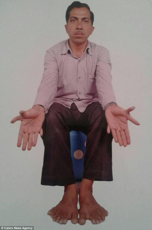 Ινδία: Ο άνθρωπος με τα περισσότερα δάχτυλα στον κόσμο! (pics)