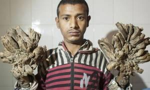 Μπαγκλαντές: Αυτός είναι o άντρας που μετατρέπεται σε δέντρο (vid)