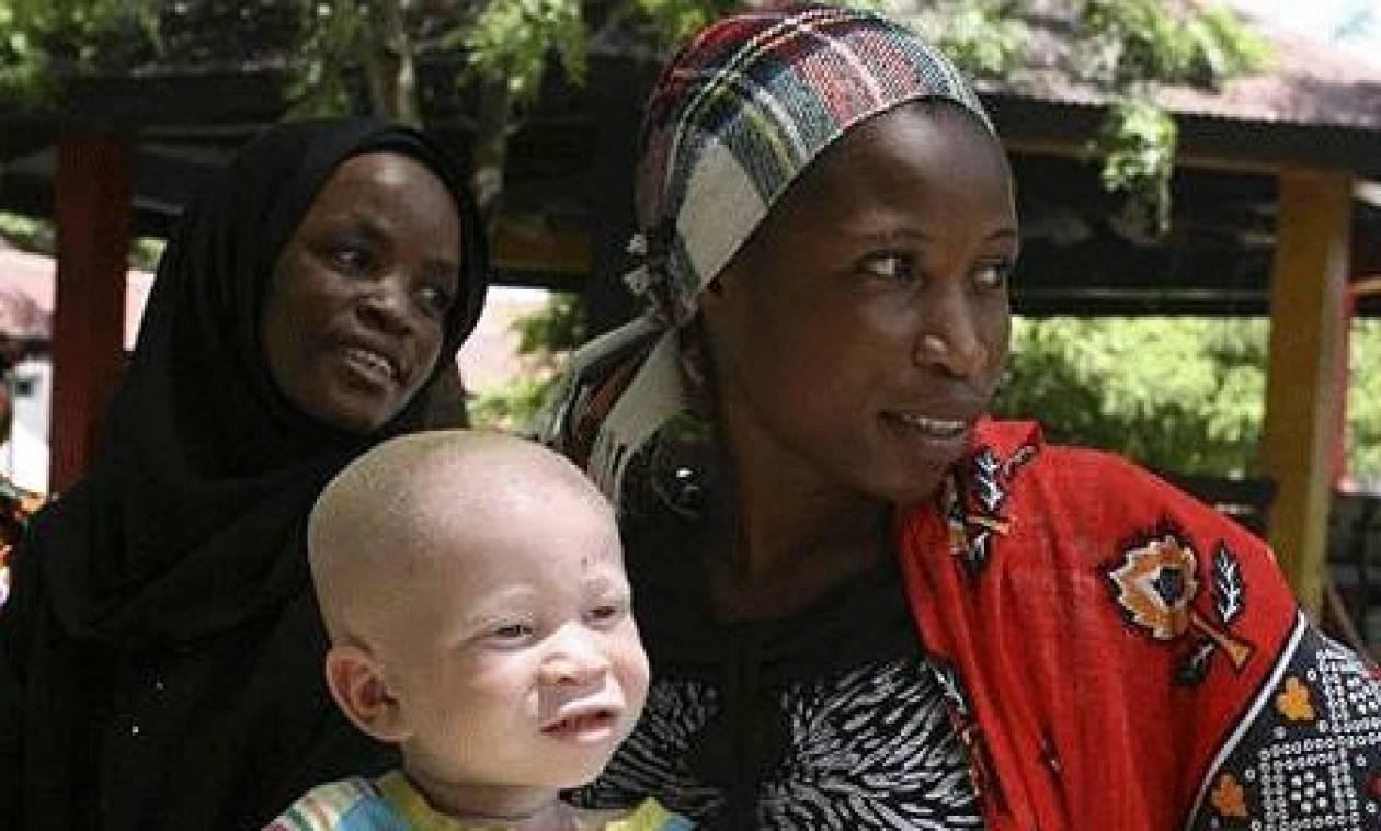 Φρίκη στο Μπουρούντι: Διαμέλισαν 5χρονο κοριτσάκι που έπασχε από αλφισμό