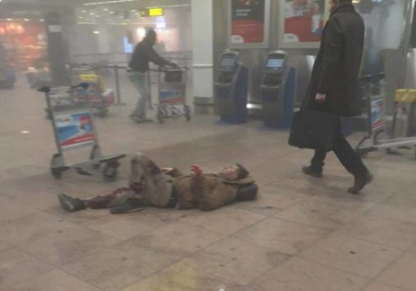 Εκρήξεις στο αεροδρόμιο των Βρυξελλών: Σοκ προκαλούν οι φωτογραφίες των τραυματιών (pics)