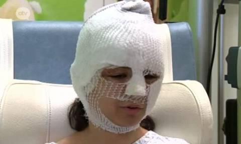 Συγκλονιστική μαρτυρία τραυματία στις Βρυξέλλες: «Ήταν σαν το τέλος του κόσμου» (pic+vid)