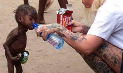 Και όμως υπάρχει ελπίδα: Το θαύμα της μεταμόρφωσης του αγοριού που βρέθηκε υποσιτισμένο στη Νιγηρία