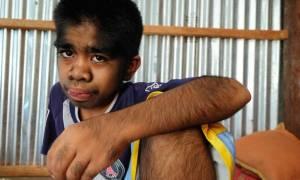 Αγόρι… λυκάνθρωπος λατρεύεται ως Θεός στην Ινδονησία (video+photos)