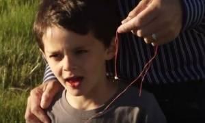 Πατέρας τράβηξε το δόντι του παιδιού του - Ούτε που περνάει το μυαλό σας τι χρησιμοποίησε