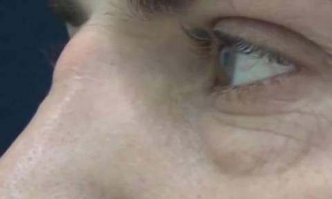 Μεγάλωνε για χρόνια μέσα στη μύτη του και τελικά… έσκασε! Αντέχετε να δείτε τι ήταν; (video)