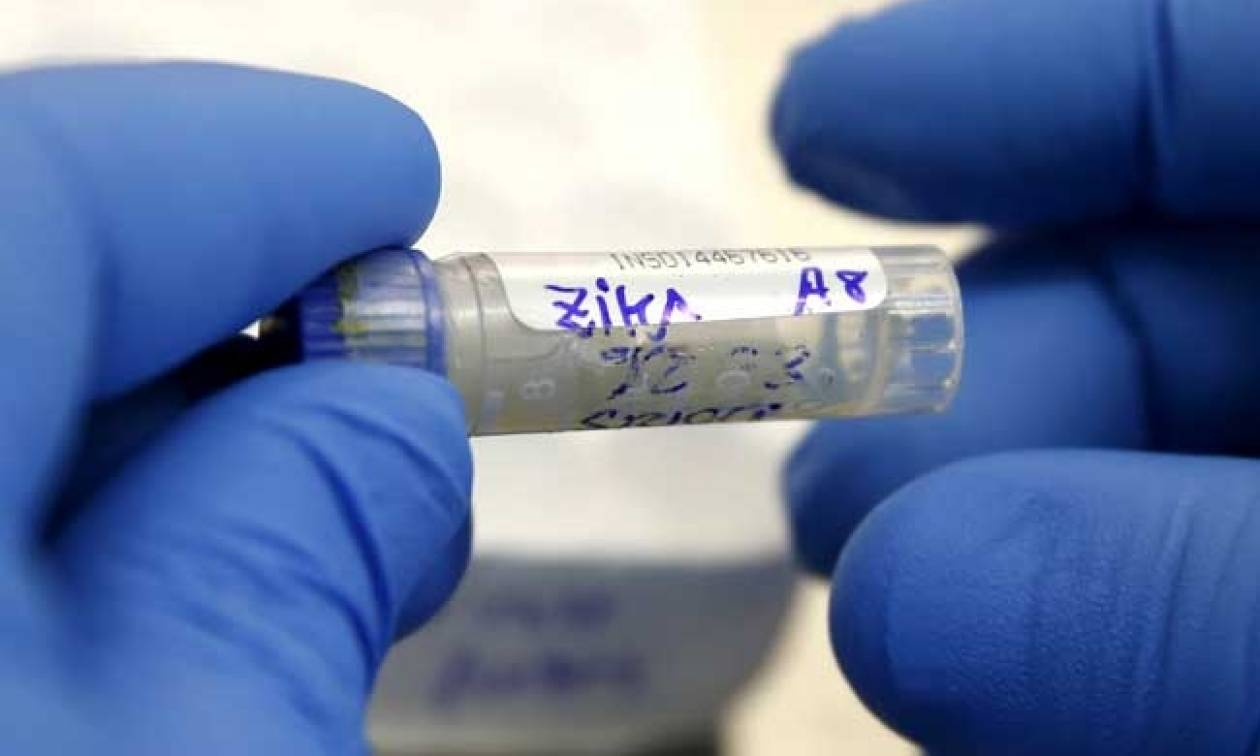Ερευνητές ανακάλυψαν αντισώματα που εξουδετερώνουν τον ιό Ζίκα
