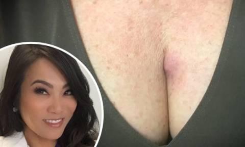 Αντέχετε να δείτε τι βγήκε από το στήθος αυτής της γυναίκας; (video)