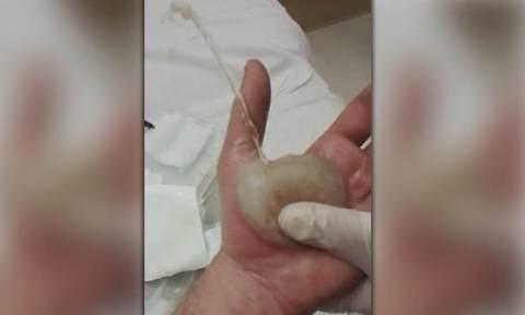 Ελάχιστοι κατάφεραν να το δουν ολόκληρο: Τεράστια φουσκάλα σκάει στο χέρι του και… (video)