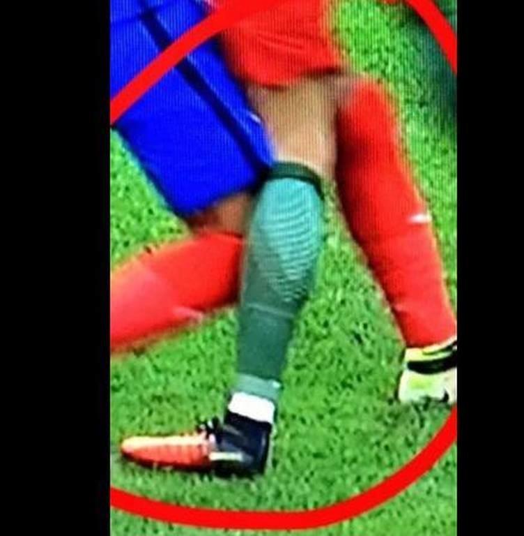 Τελικός Euro 2016: Σοκαριστικές φωτογραφίες από τον τραυματισμό του Ρονάλντο (pics)