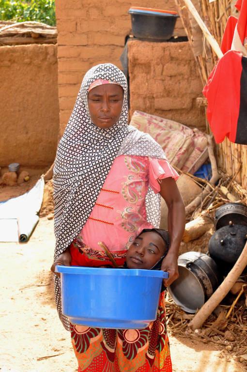 ΠΡΟΣΟΧΗ, ΠΟΛΥ ΣΚΛΗΡΕΣ ΕΙΚΟΝΕΣ: Δείτε τη γυναίκα χωρίς άκρα που ζει μέσα σε μια λεκάνη (vids+photos)