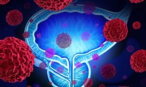 Καρκίνος προστάτη: Ίδια τα οφέλη της ρομποτικής προστατεκτομής και της χειρουργικής αφαίρεσης