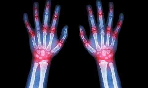 Ρευματοειδής αρθρίτιδα: Τα οφέλη από την θεραπεία της για την καρδιά