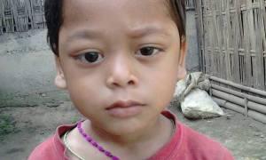 Ινδία: Εικόνες – σοκ - Το αγόρι με τα μάτια που αιμορραγούν