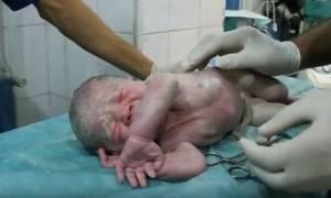 Συγκλονιστικό βίντεο: Γιατροί στη Συρία επανέφεραν στη ζωή νεογέννητο αγοράκι