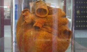 Φρικιαστικό: Ανακάλυψαν ανεξήγητα καλοδιατηρημένη καρδιά και 45 εγκεφάλους (video+photos)