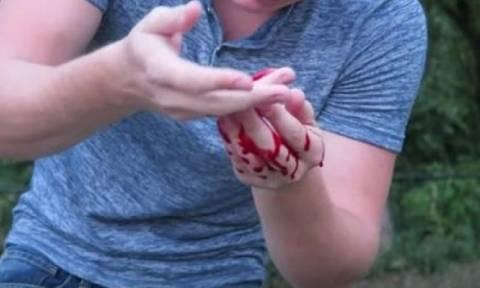 Βίντεο σοκ: Διάσημος σταρ έκανε το... νίντζα και έκοψε το δάχτυλό του! (video)
