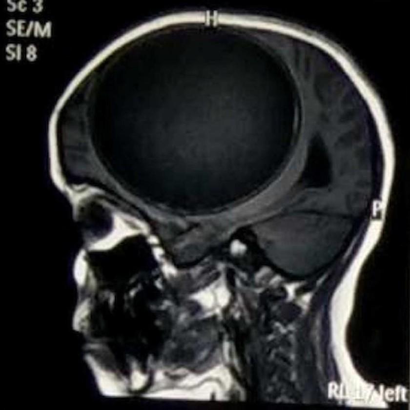 Υπέφερε από δυνατούς πονοκεφάλους και οι γιατροί ανακάλυψαν κάτι φρικιαστικό! (video+photos)