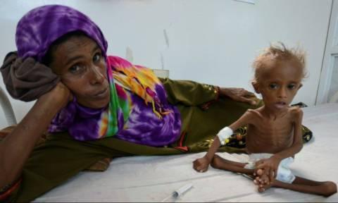 Υεμένη: Σοκάρει η εικόνα του υποσιτισμένου παιδιού που αποτυπώνει τη φρίκη του εμφυλίου